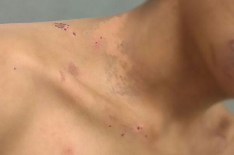 اسید پاشی زوج آدم ربا به گروگان 16 ساله