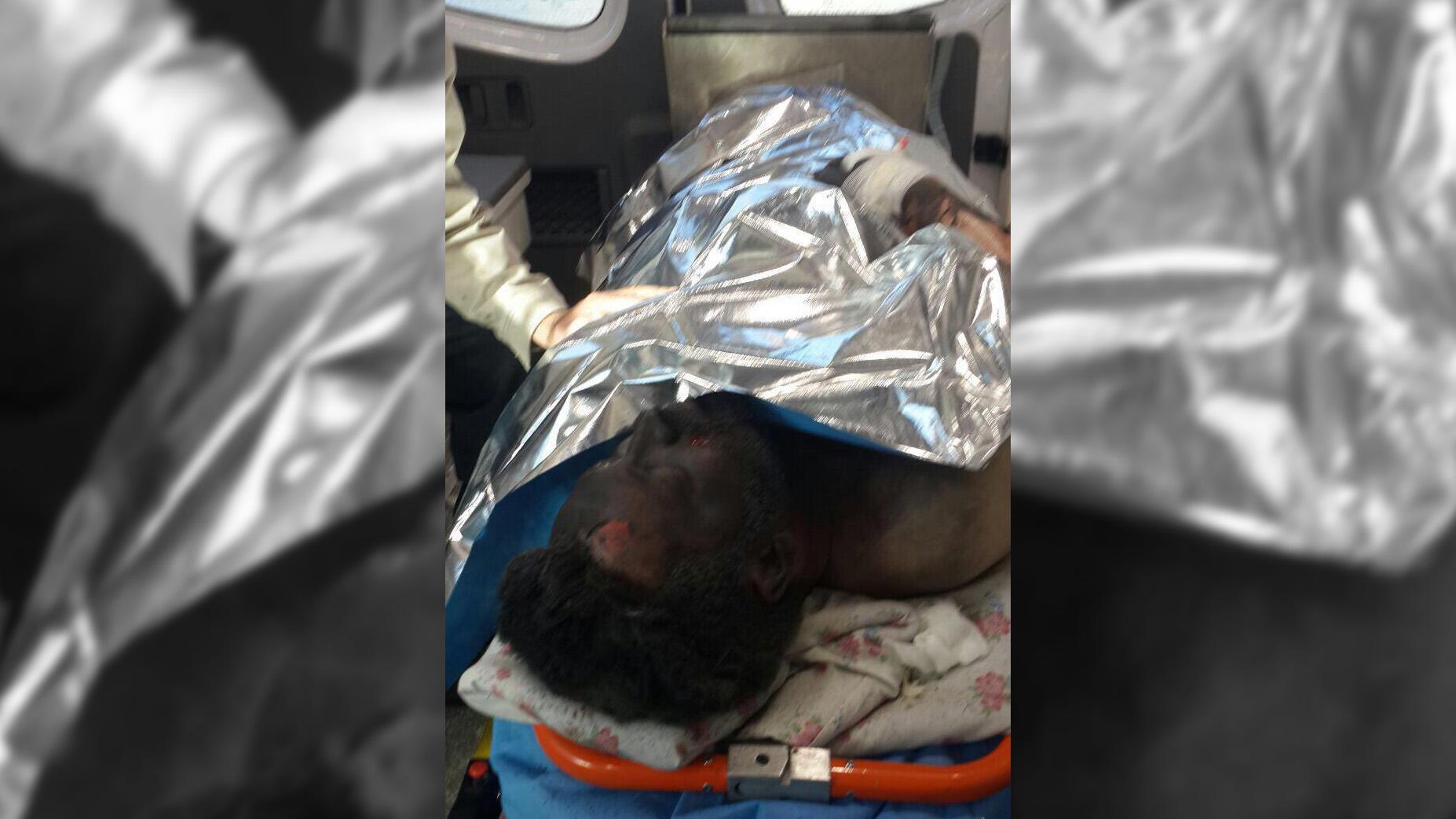 انفجار مواد محترقه دست ساز  باعث قطع دست جوان 30 ساله و سوختگی ۷۰ درصد وی شد.