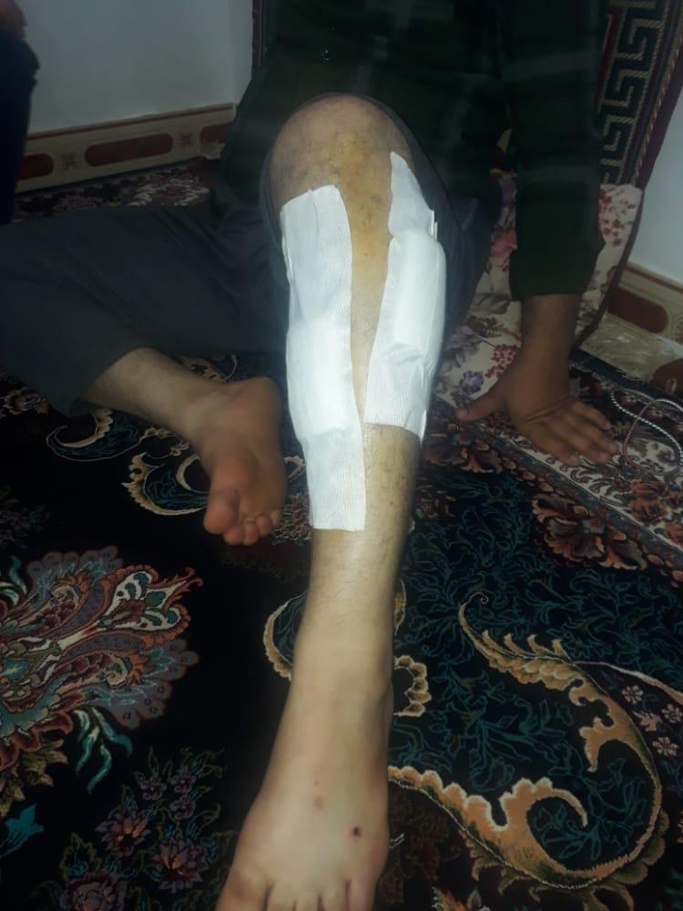 قطع برق منطقه جرف علیاخرمشهر به دلیل سرقت کابل