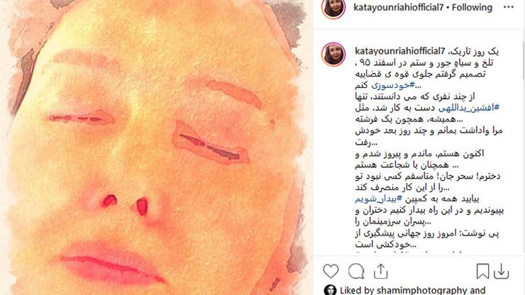 اقدام به خودسوزی بازیگر زن خوشچهره سینمای ایران  مقابل قوه قضائیه
