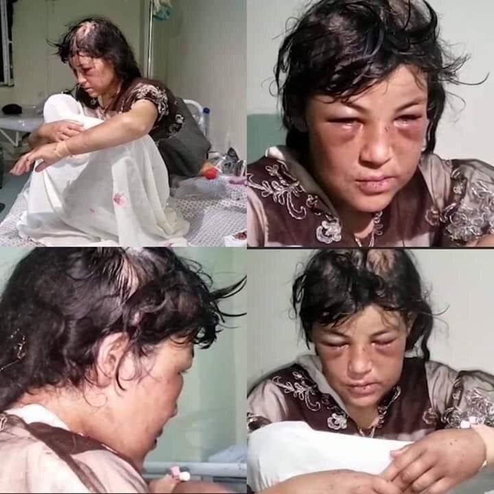 زلیخا زن کتک خورده افغانی/ همسر آزاری