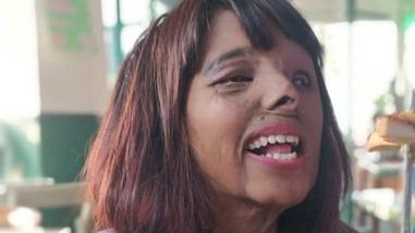 زندگی دختر جوان، ۲۳ سال پس از اسیدپاشی