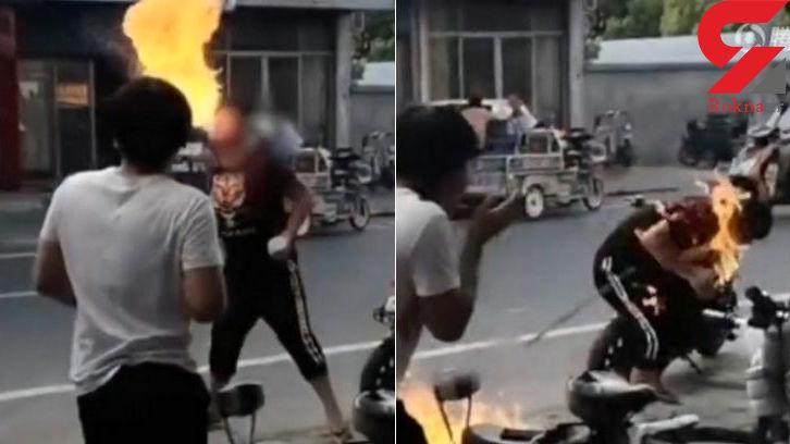 آتشخواری یک نوجوان او را از قیافه انداخت +فیلم