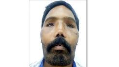این مرد چگونه چهره اش وحشتناک شد + فیلم