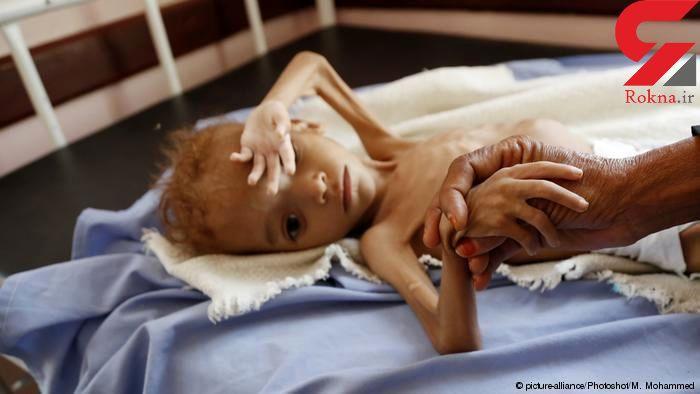 تصویر این دختر 7 ساله قلب آدمهای زیادی را در جهان شکست +عکس