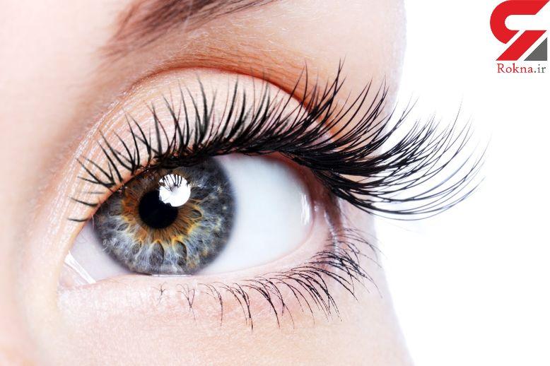 درمان کبودی دور چشم