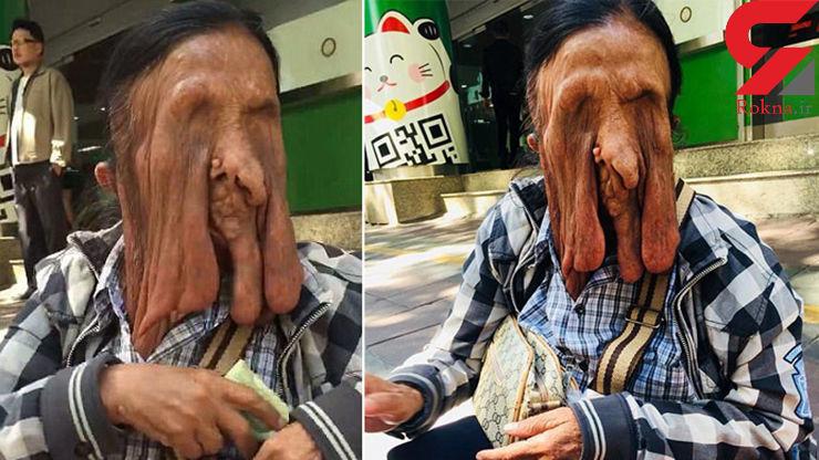وحشتناکترین زن جهان که حاضر به جراحی چهره خود نیست + عکس ترسناک