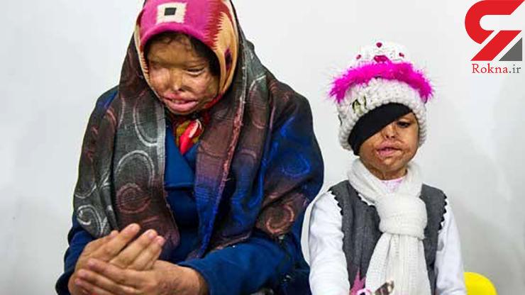 اسیدپاشی پدر کرمانی بی رحم روی همسر و 2 دخترش / این فیلم اشک تان را درمی آورد