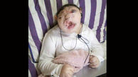 تولد عجیب ترین دختر جهان! +عکس