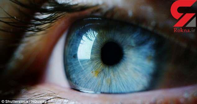 تاری دید نشان دهنده چه بیماری هایی است؟
