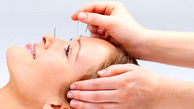درمان نقرس با طب سوزنی