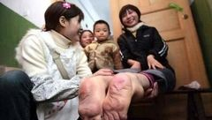 زنی با پاهای برعکس شهرت جهانی پیدا کرد+عکس