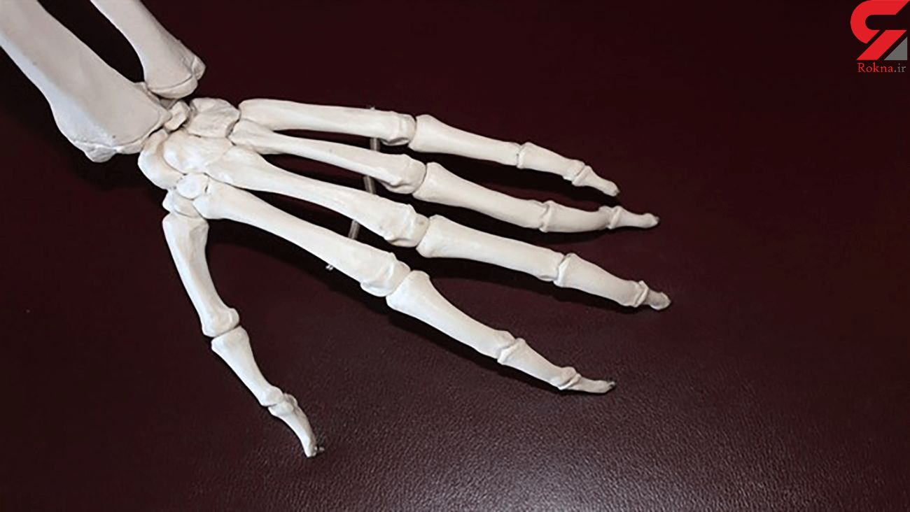 New research predicts whether rheumatoid arthritis patients will respond to treatment