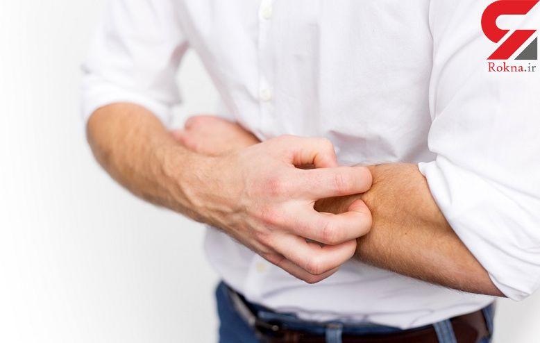 جلوگیری از خارش پوست  در هوای سرد زمستانی