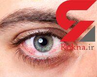 درمان خشکی چشم با این روش های موثر