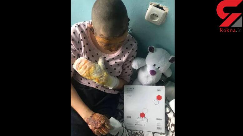 این هیولا دختر 16 ساله خود را زنده زنده به آتش کشید+ عکس/ اوکراین