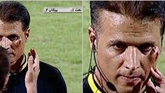 عکس صورت خونین داور فوتبال / فاجعه در ورزشگاه آبادان +عکس