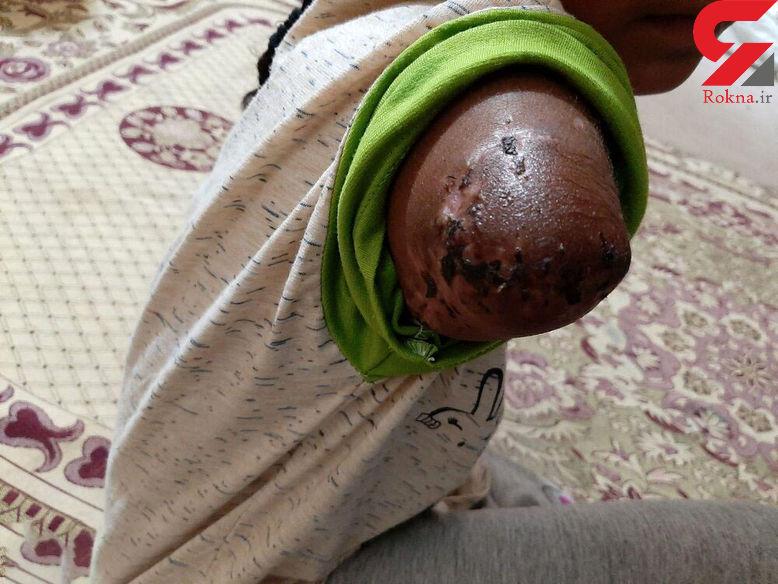 صحبت خانواده حوا ، دختری که دستش طعمه تمساح شد + عکس