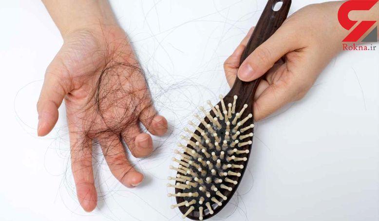 چرا ریزش مو در زنان بیشتر است؟