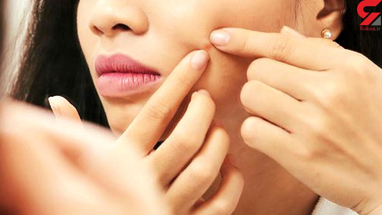 درمان جوشهای سرسیاه با ماسک های طبیعی