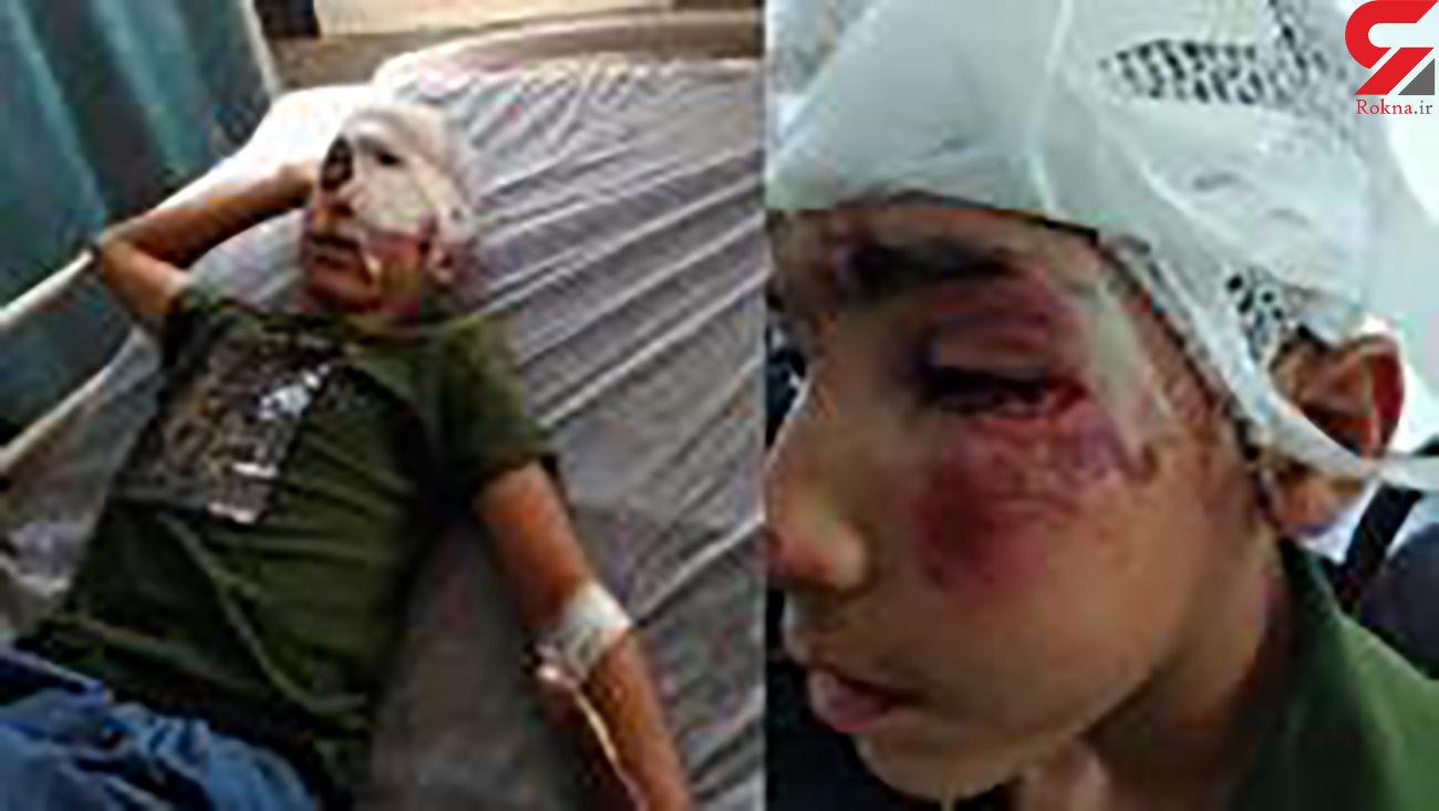 مانی هاشمی کولبر 14 ساله تحت عمل جراحی چشم قرار گرفت / در تهران صورت گرفت+ عکس