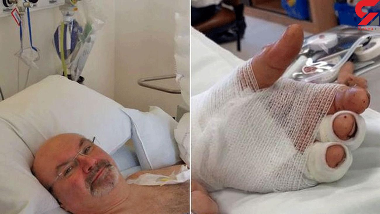 Doctors re-attach man's hand after it was chopped off by machine in incredible surgery