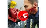 عکس از شکافته شدن صورت یک جوان تهرانی با چاقوی زورگیران خشن
