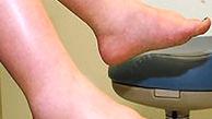 راهکارهای طلایی برای تسکین ورم پا
