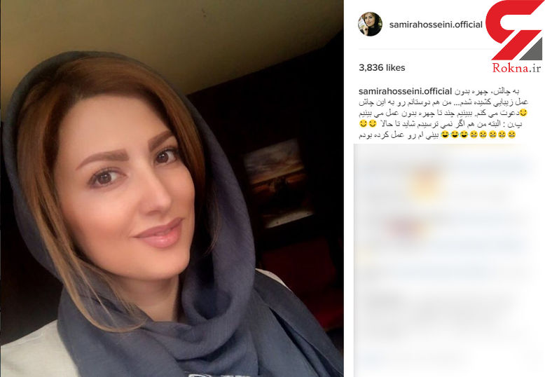 """بازیگر زن مشهور ایرانی به چالش """"چهره بدون عمل زیبایی"""" پیوست! +عکس"""