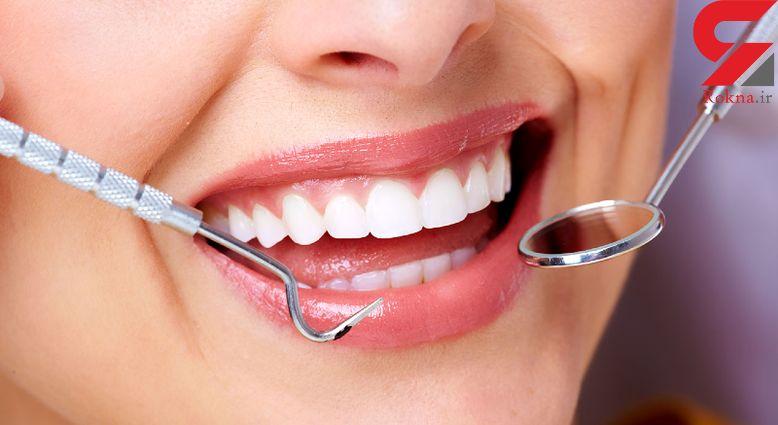 دلایل نامرتب شدن دندان ها!