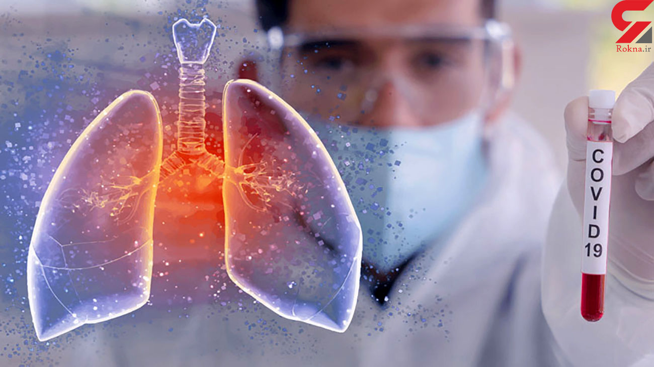 از کجا بفهمیم ریه مان درگیر کروناست؟ + درمان های موثر