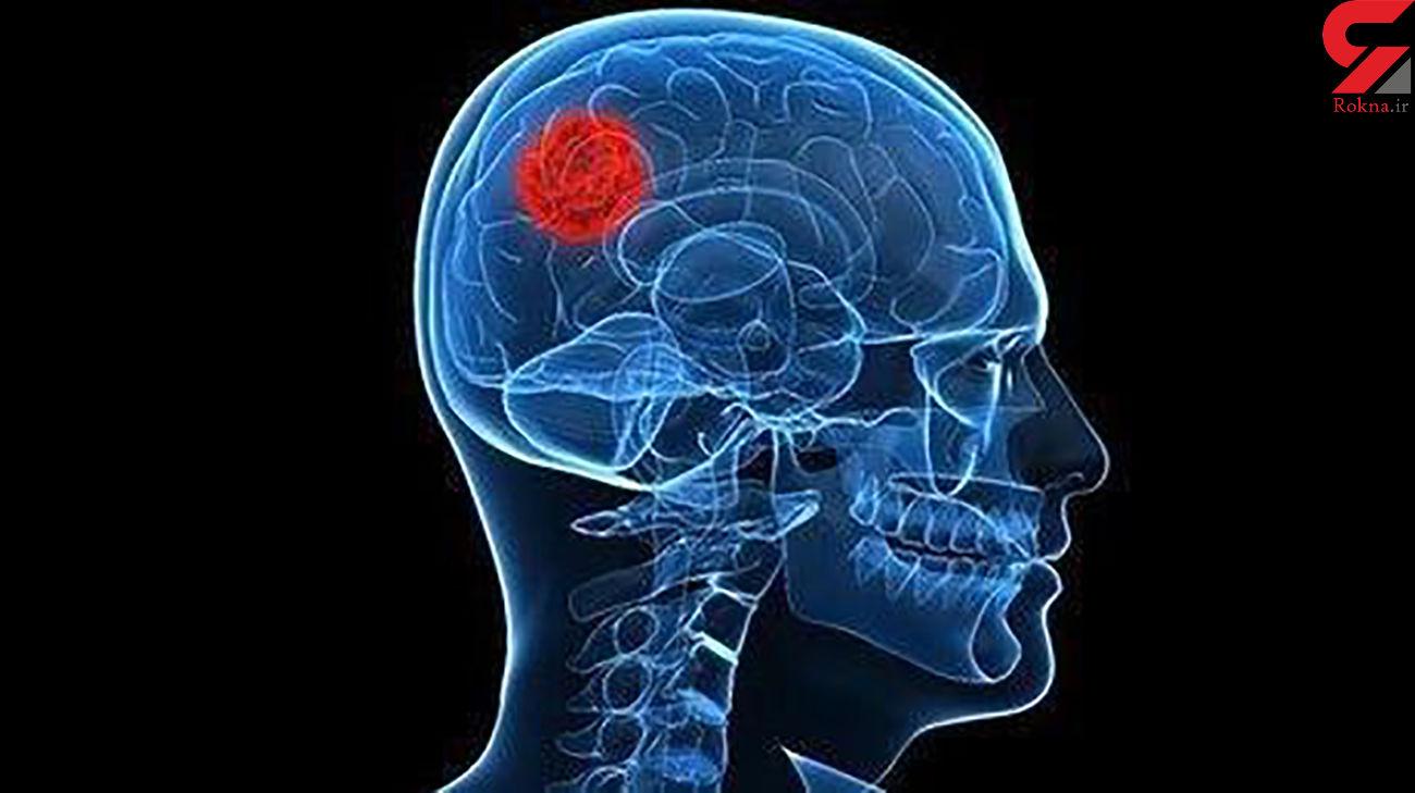 محقق ایرانی به جنگ تومور مغزی رفت