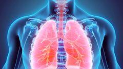 درمان سرطان ریه با ساده ترین روش ها