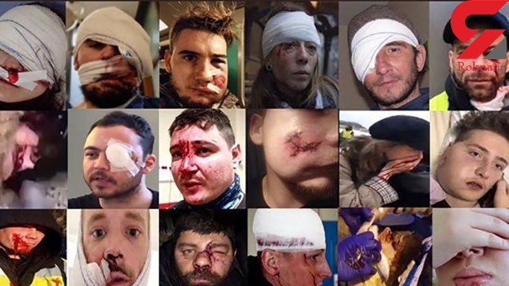 کور شدن معترضان خیابانی / از دست دادن چشم بهای اعتراض+ عکس چشم های معترضان