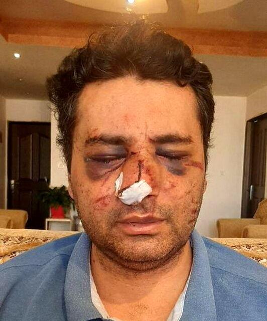 ضرب و شتم شدید یک متخصص بیهوشی توسط همراهان یک بیمار در پیرانشهر+عکس