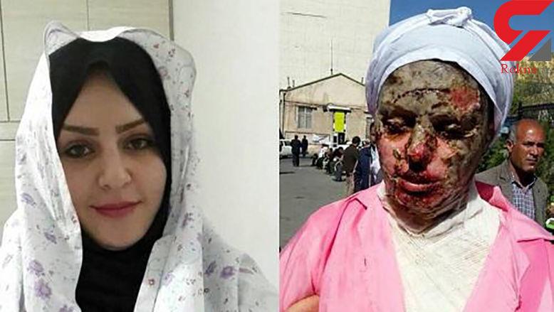آخرین جزئیات درمان «معصومه» قربانی اسیدپاشی تبریز + فیلم
