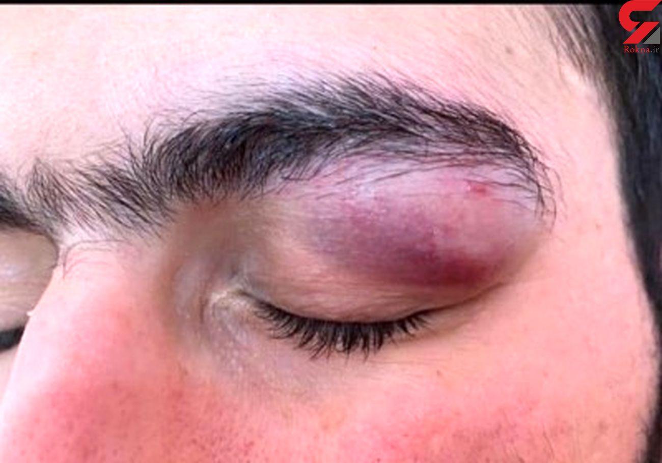 حمله با چاقو به چشمان یک پزشک در بندرعباس + عکس تلخ