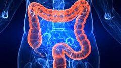 ریسک سرطان پروستات با این بیماری افزایش پیدا می کند