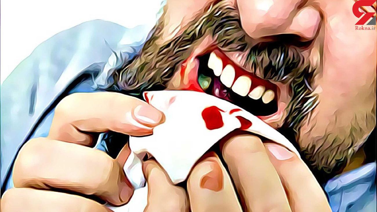 دلایل خونریزی لثه هنگام استفاده از نخ دندان