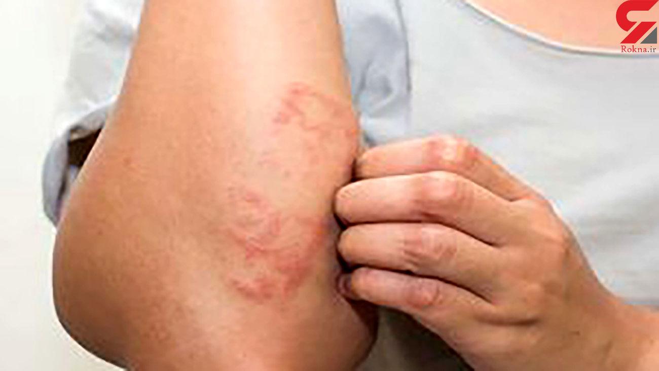 مشکلات پوست و مو ناشی از کرونا