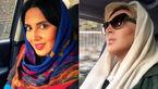 عکس های لیلا بلوکات قبل و بعد از عمل زیبایی بینی +عکس