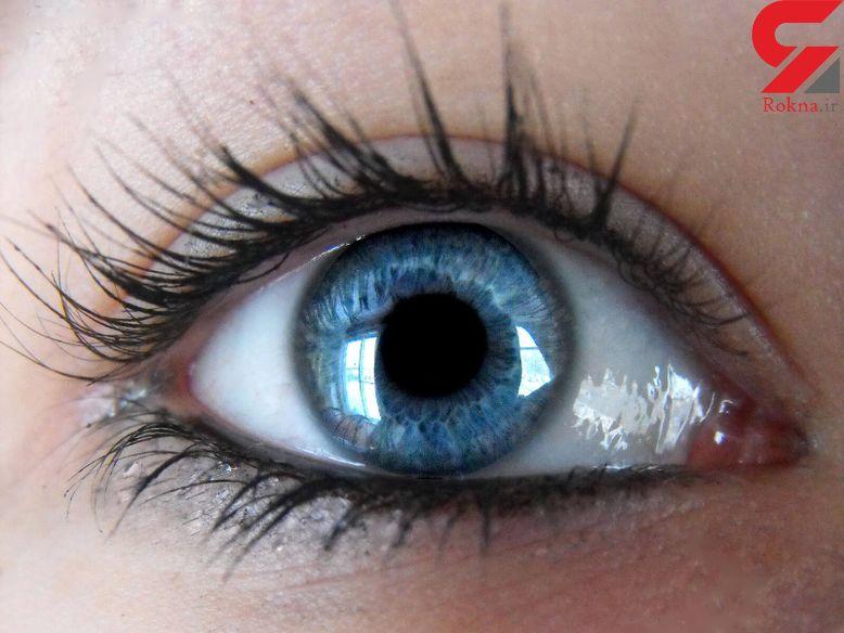 ان بیماران زودتر به آب مروارید چشمی مبتلا می شوند