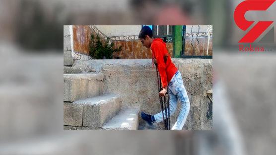 سرگذشت عجیب شاهین 14 ساله با زانوهای کج در یاسوج