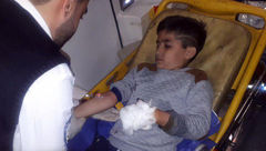 تصویر بلای تلخ که در چهارشنبه سوری بر سر پسربچه 12 ساله آمد + عکس
