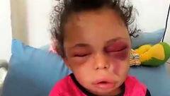 چهره داغون سرنوشت دختر ۵ ساله ! + جزییات