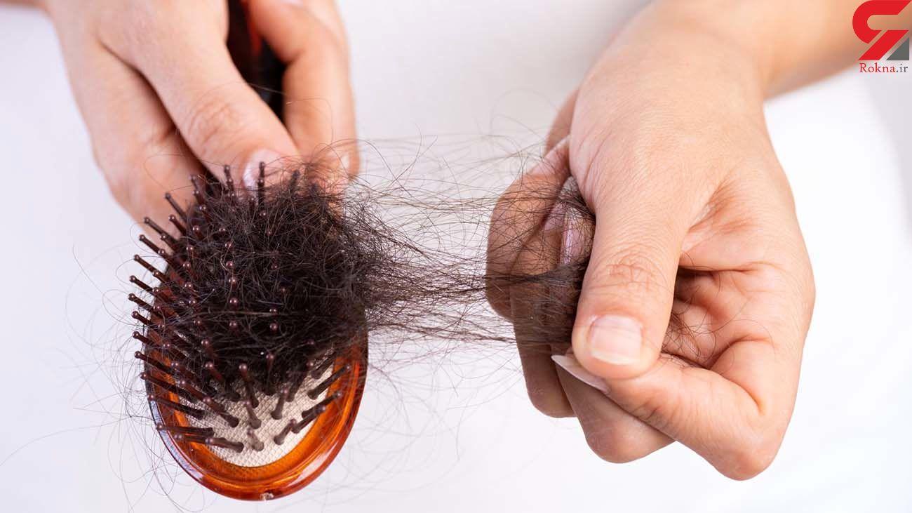 کرونا باعث ریزش مو میشود + چگونه درمان کنیم؟