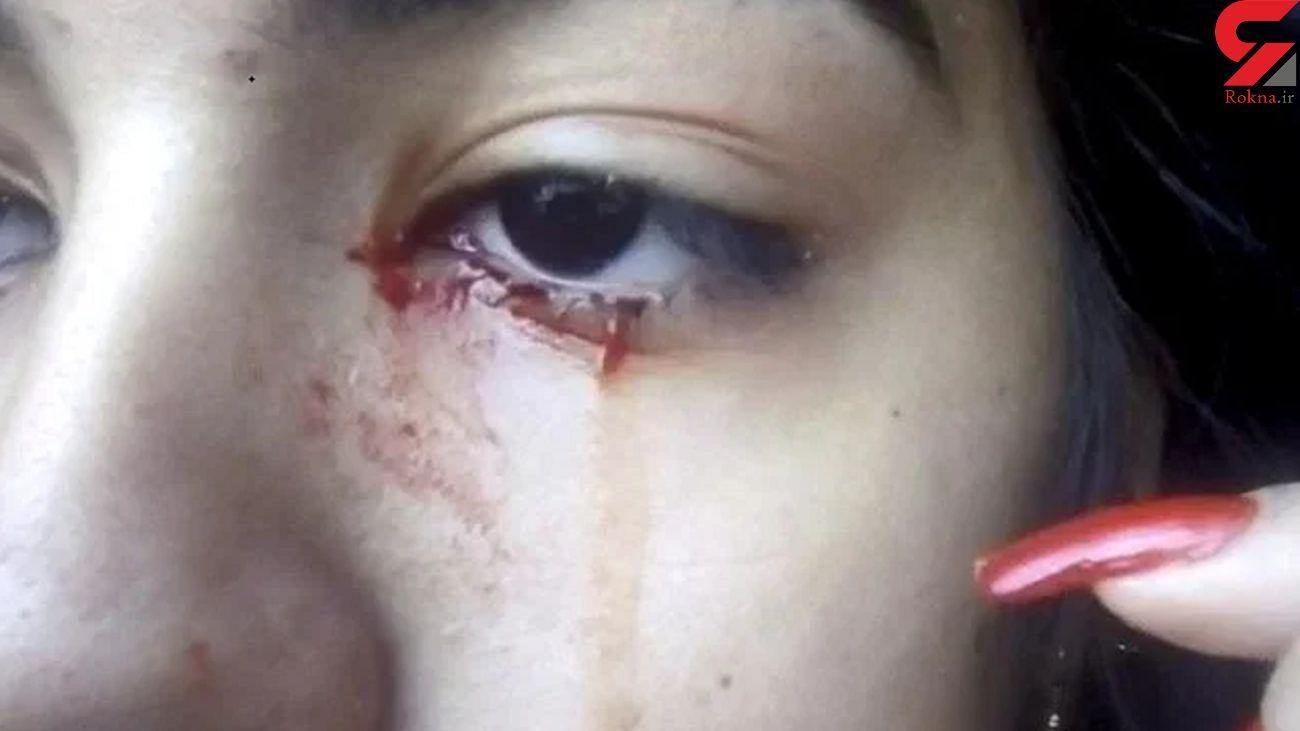دختری 15 ساله که خون گریه می کند  + عکس