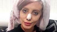 سحر تبر چگونه در اینستاگرام متولد شد؟! / جزئیات دستگیری عروس مرده و تصاویر قبل و بعد جراحی هایش