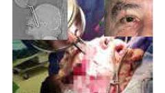 عکس وحشتناک از فرو رفتن دسته ماهیتابه در چشم  آشپز + جزییات
