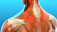 چه چیزهایی موجب درد عضلانی می شود؟
